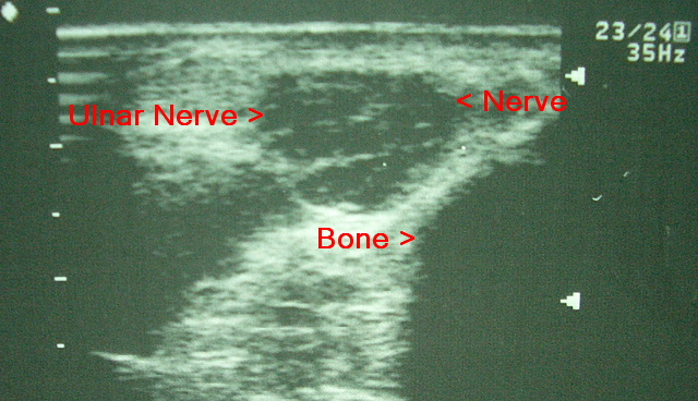 ulnar-nerve-at-elbow.JPG