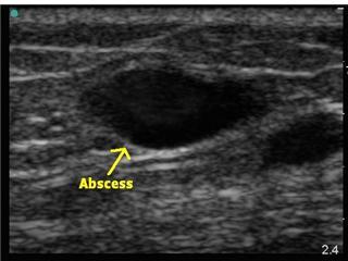 ultrasound-abscess.jpg