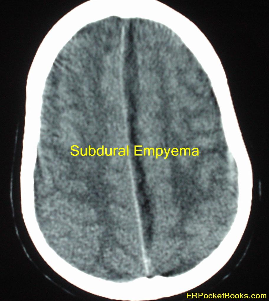 subdural-empyema-brain.JPG