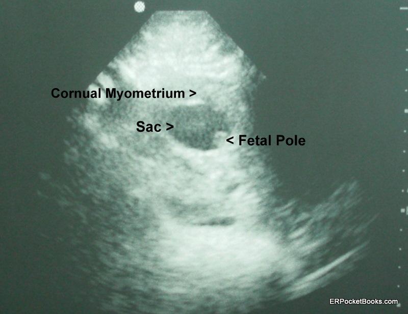 cornual-ectopic-r-adnexa.JPG